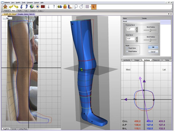 Canfit 3D CAD Prosthetic and Orthotic Design Software