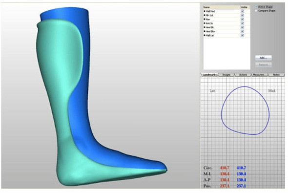 Canfit 3d cad prosthetic and orthotic design software for Orthopedic templating software